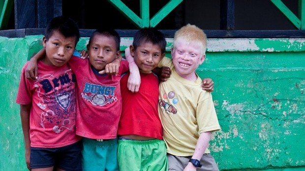 Albinos kunas the highest rate of the world